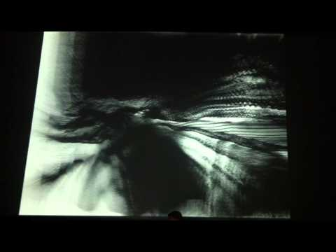 XX XY – Luma – LPM 2011